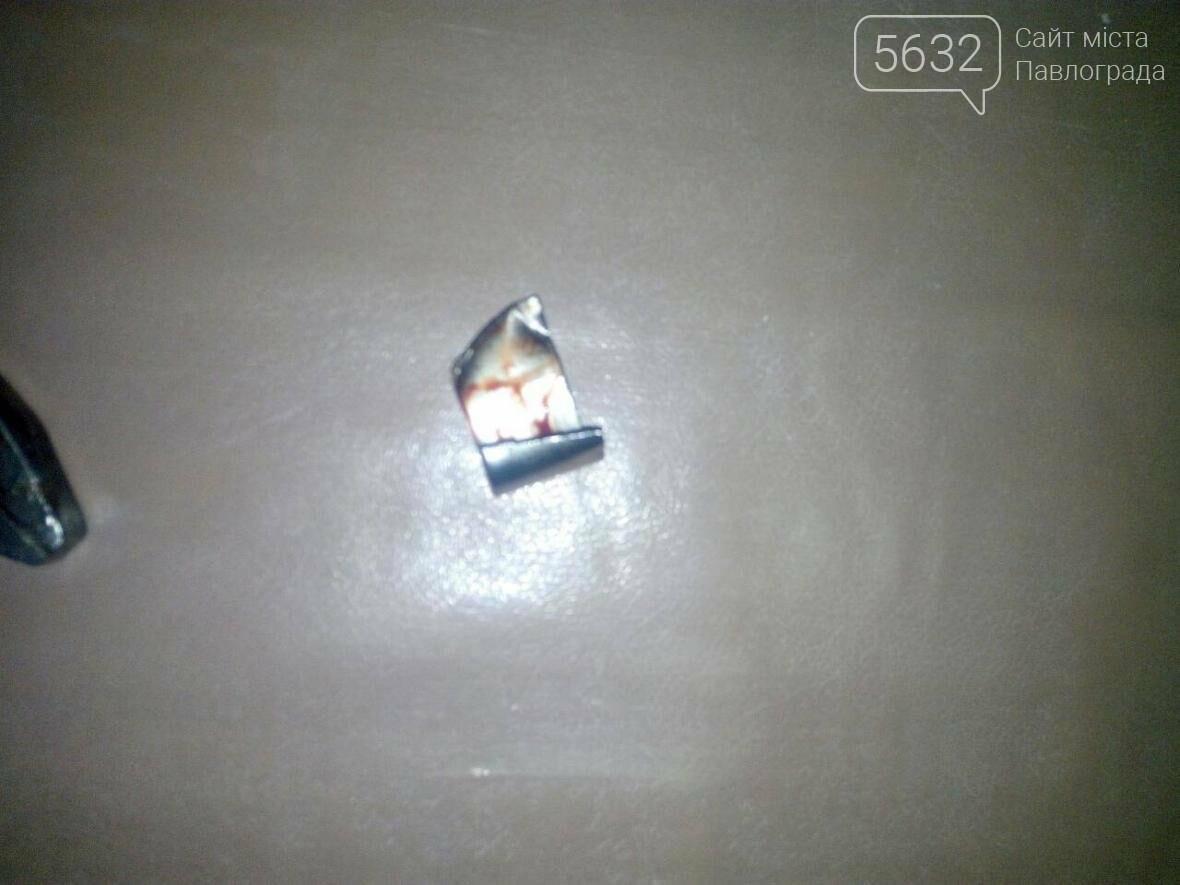 Павлоградські надзвичайними врятували палець маленької дівчини , фото-1